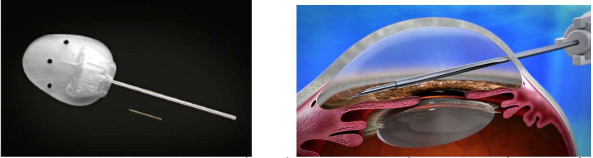 Το XEN σε συγκριση με την παραδοσιακή βαλβίδα Ahmed και ο τρόπος με τον οποίο τοποθετείται στον οφθαλμό του ασθενούς.