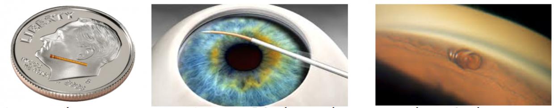 To Cypass σε σύγκριση με το νομισμα 10 cent του δολαρίου, o τρόπος με τον οποίο τοποθετείται και το Cypass τοποθετημένο μέσα στον οφθαλμό του ασθενούς.