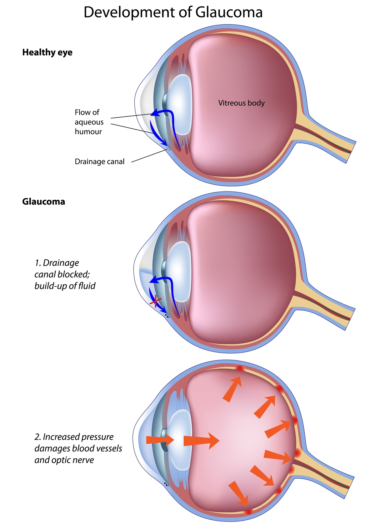 How is glaucoma created?