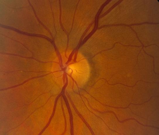 γλαύκωμα φυσιολογικό οπτικό νεύρο