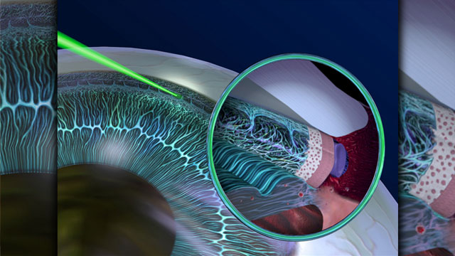 Laser for the treatment of glaucoma