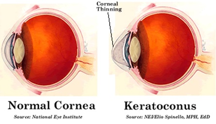 Keratoconus-normal-cornea