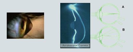 Κερατόκωνος - Θεραπεία Κερατόκωνου