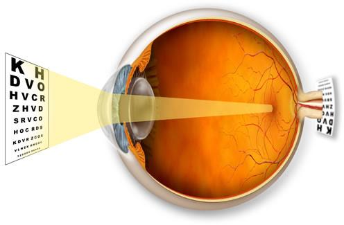 long-sight-hypermetropia_1