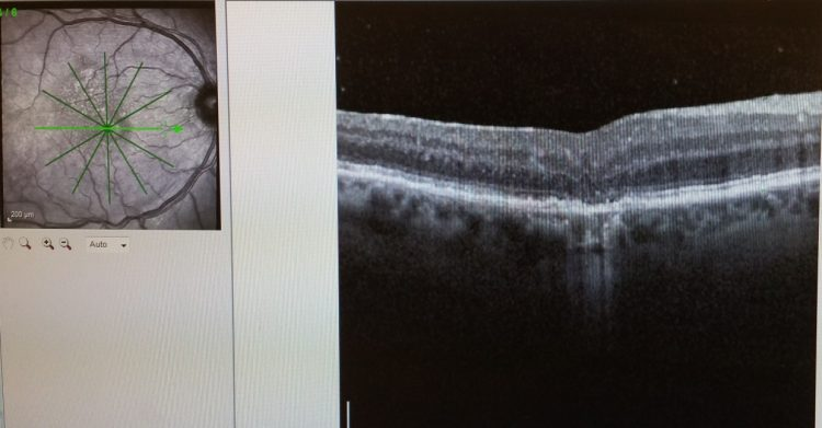 macular hole with erm AFTER