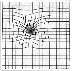 Όραση ασθενή με ΗΕΩ στον πίνακα Amsler