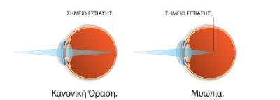 Μυωπία laser Μυωπίας