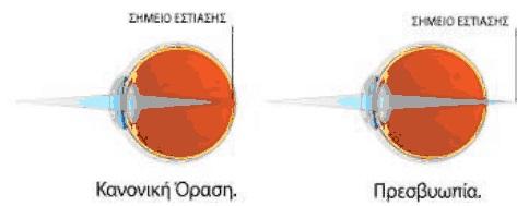 Πρεσβυωπία - Laser Πρεσβυωπίας